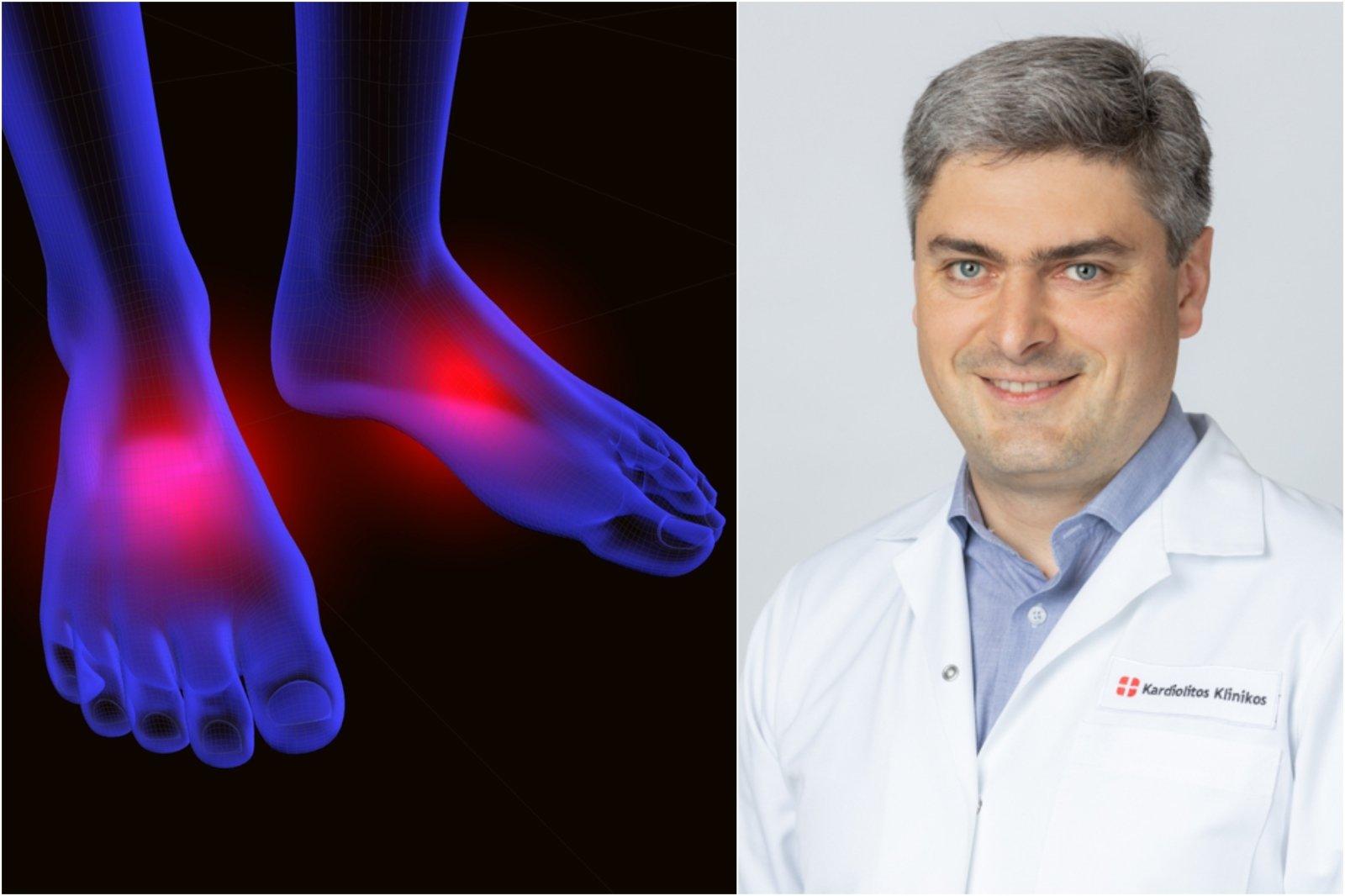 pėdos sąnarių ligos