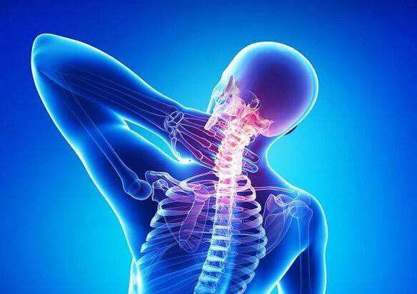gydymas bendrą sąnarių osteochondrozė krakmolui sąnarių gydymo