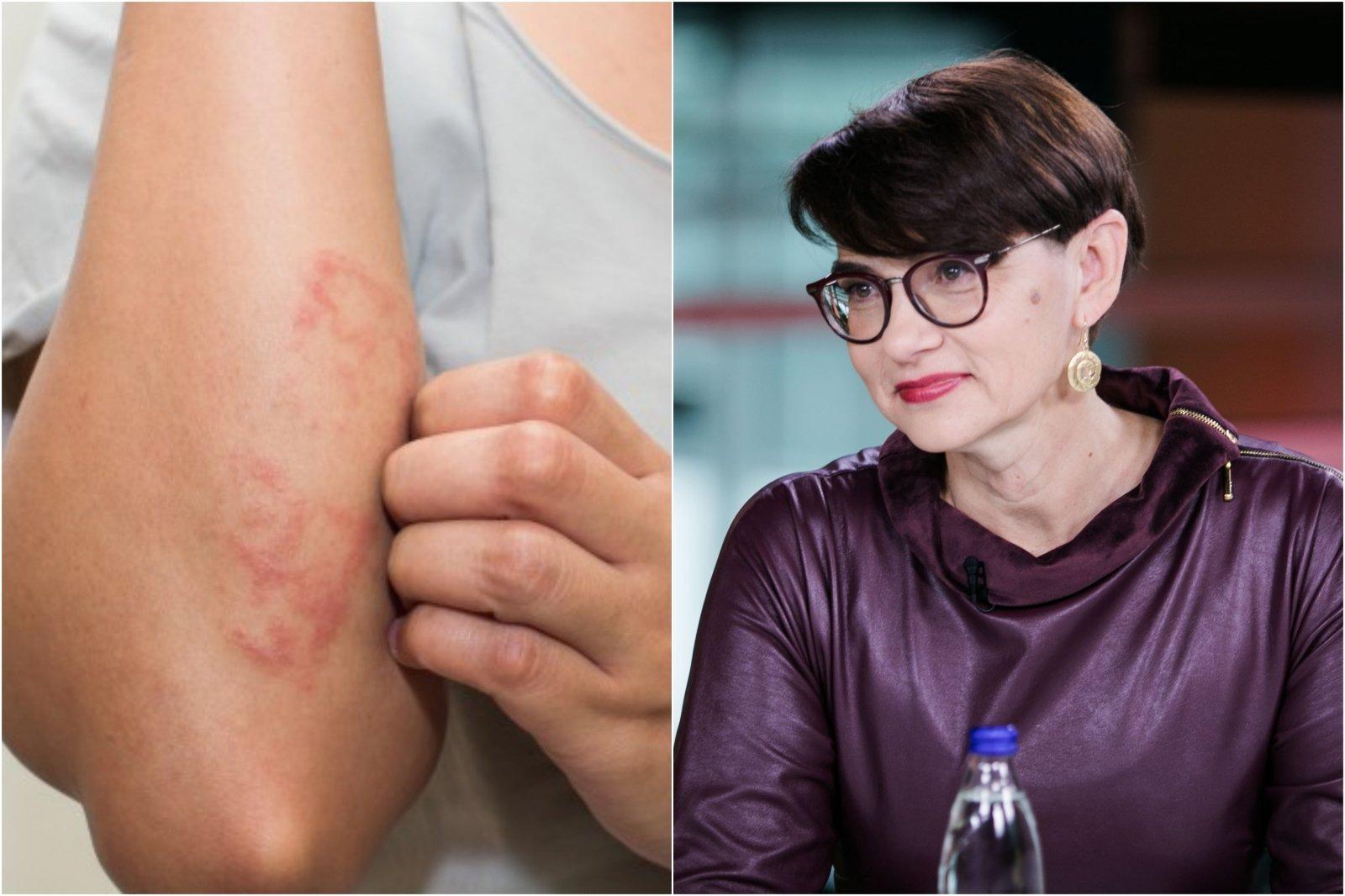 alergijos į sąnarių kremu kaip padaryti bendrus sąnarius