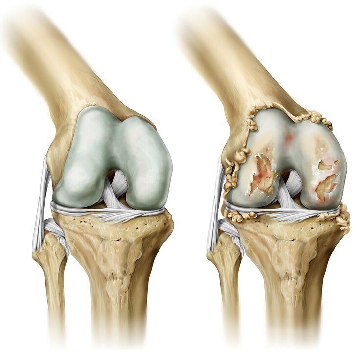 alergijos į sąnarių kremu artritas pirštai prevencija