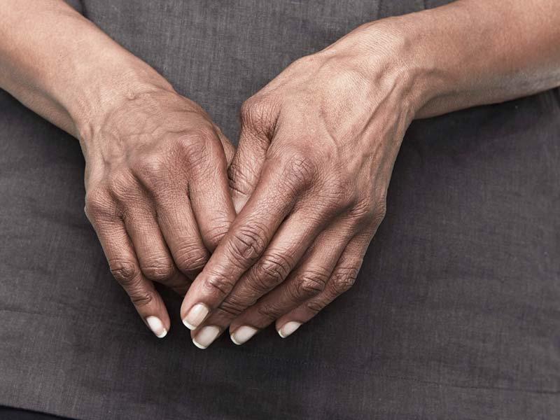 artritas iš pirštų gydymas sąnarių