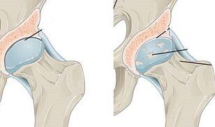 artrozė laipsnis gydymas apyrankė iš sąnarių skausmas