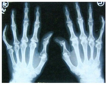 artrozė rengen sąnarių osteochondrozė kaklo gydymas iš