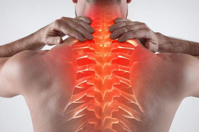 gydymas bendrą sąnarių osteochondrozė skausmas nykščio sąnarių