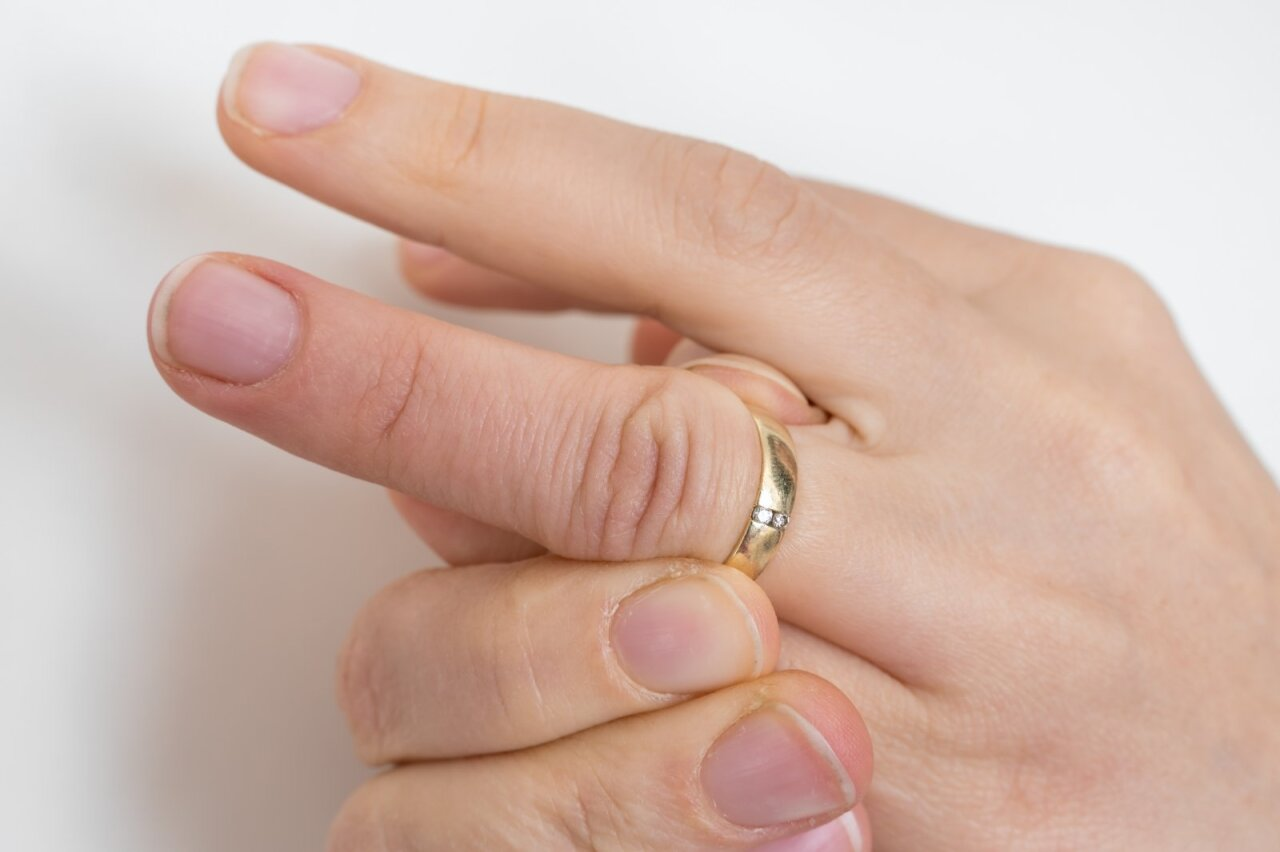 skubėti paslėpti skausmą reumatoidinis artritas dėl pirštų