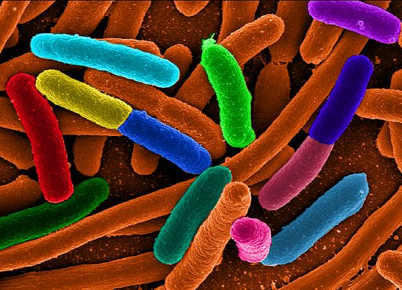 bakterijos sukelia ligas sąnarių