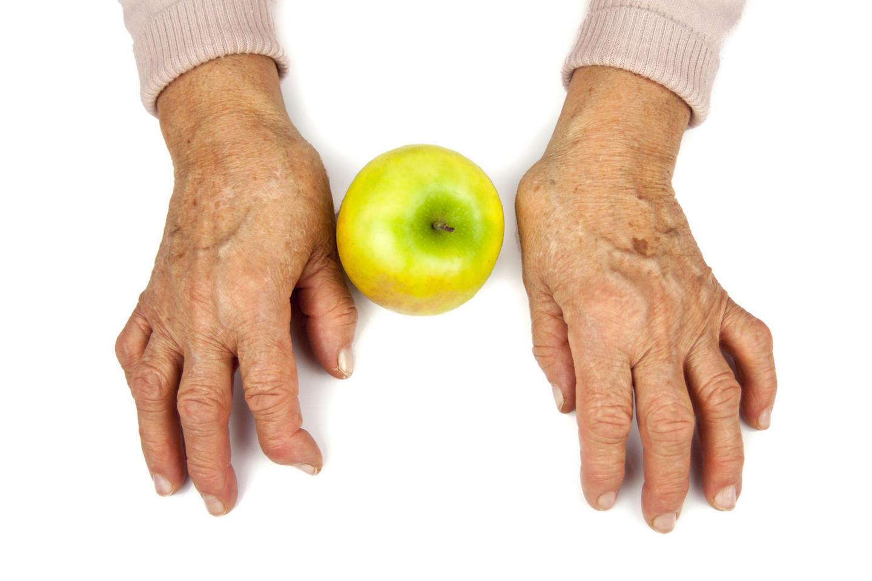 tepalas nuo skausmo sąnarių trijų skausmas dilbio raumenų ir alkūnės sąnario