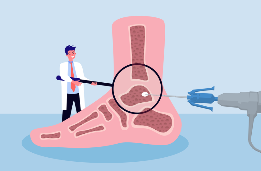 žolinis vaistas nuo sąnarių skausmas flosterone gydymas sąnarių