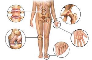 artritas piršto rankas nelenktų