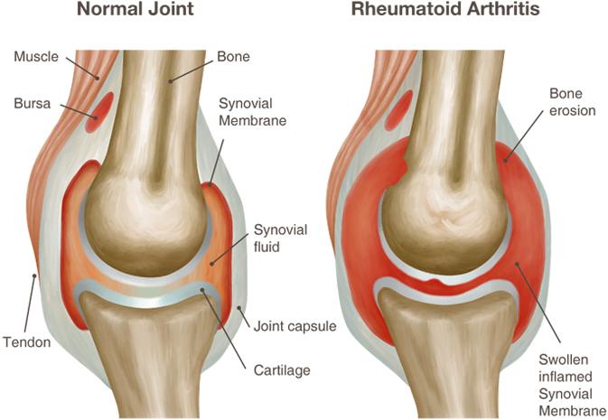 po to kai infekcinio artrito sąnarių sustaines gydymas braga