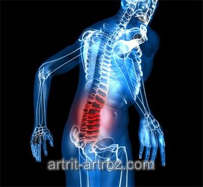 raumenų ir sąnarių serga po švitinimo skausmas į alkūnių sąnarių