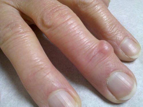 osteochondrozės gydymas liaudiskai produktai iš sąnarių skausmas