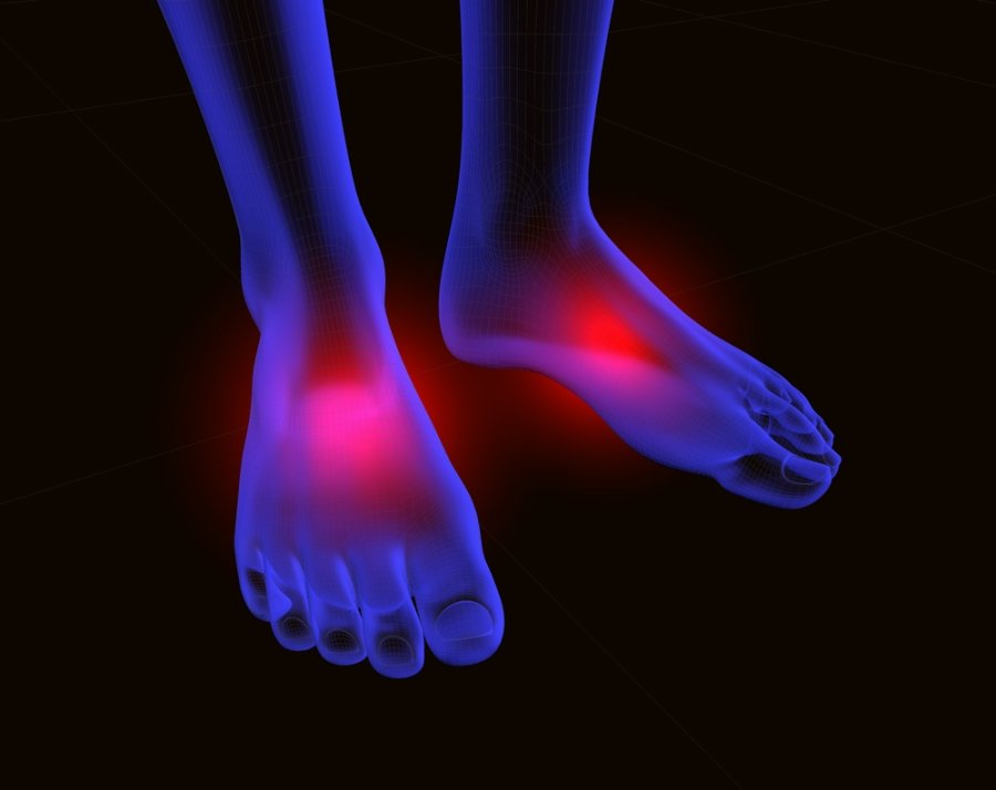 kaip pašalinti skausmą artritu pirštais