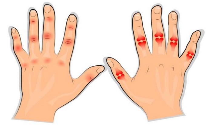 gydymas sąnarių altajaus prevencija artrito ant rankų