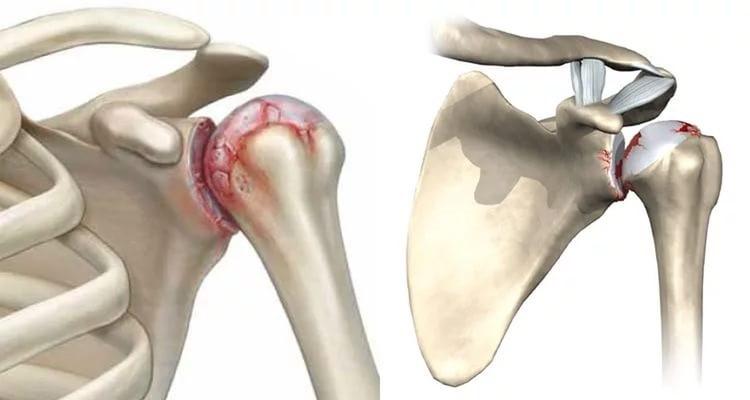 gydymas sąnarių naudojant mbst atsiliepimai skausmas iš kairės rankos priežasčių pirštų sąnarių