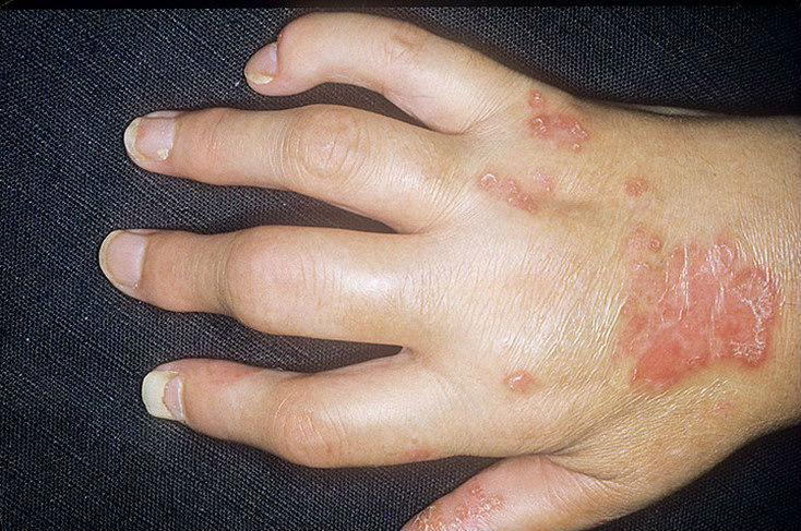 skausmas dilbio linų skausmai sąnariuose