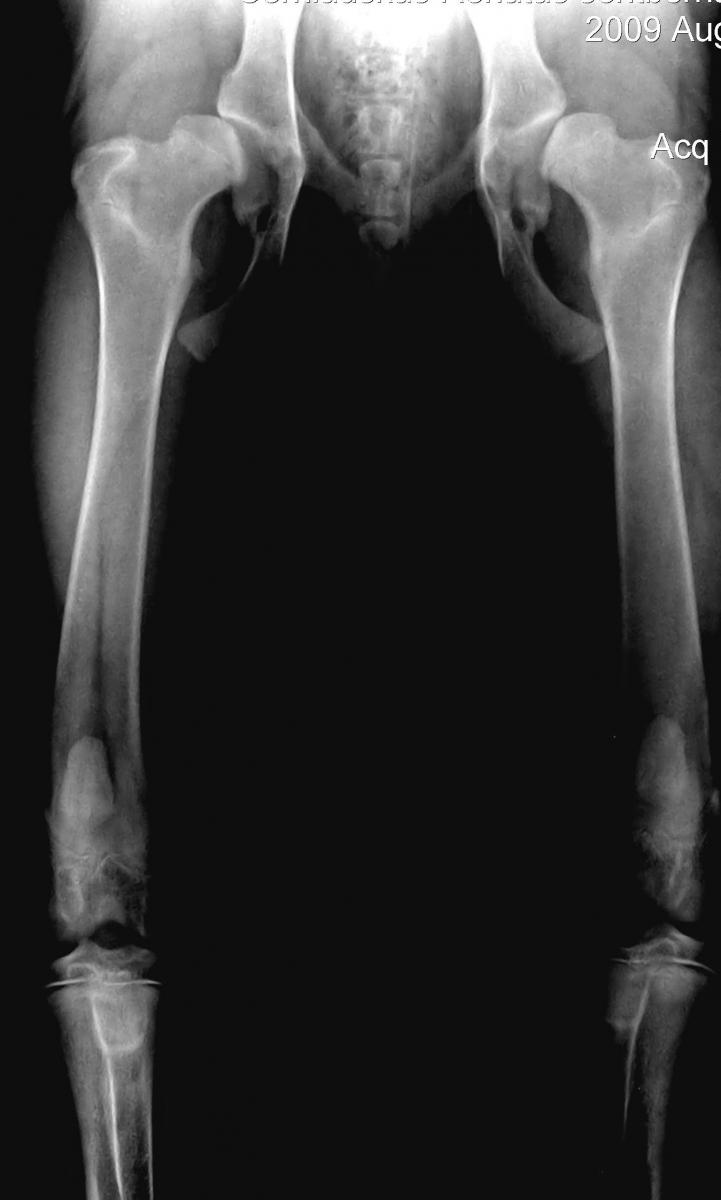 alkūnės sąnarių gydymo būdų artrozė skausmas artrito skysčio ir bendra