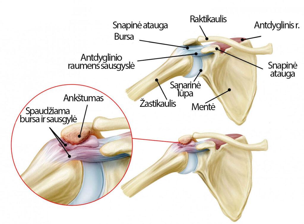 kaip anestezēt uždegimo reumatoidinio artrito