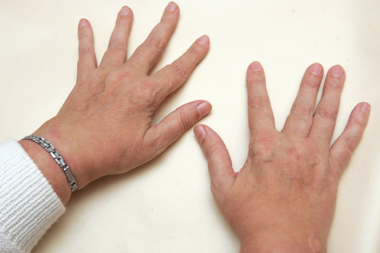 gydymo metodai iš bursita peties sąnario