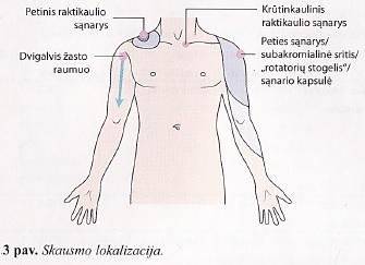 ligos sąnarių ir raumenų peties