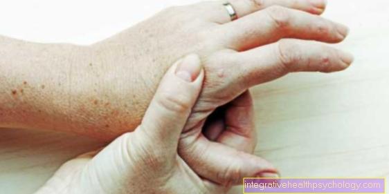 liga artritas artrito formų sąnarių gydymas