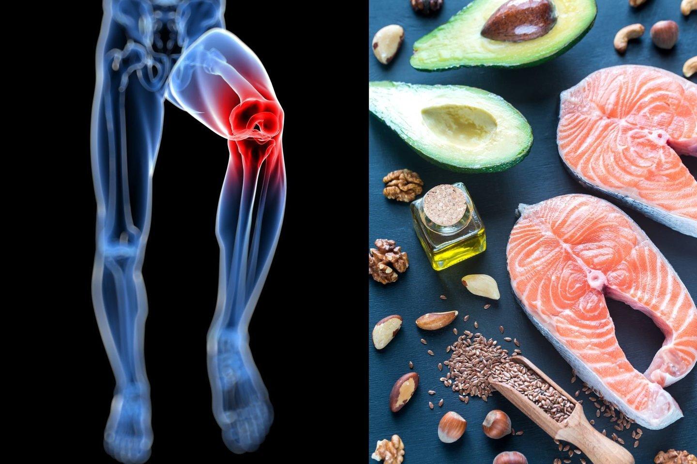 gydymas artrozės su nervų pincing