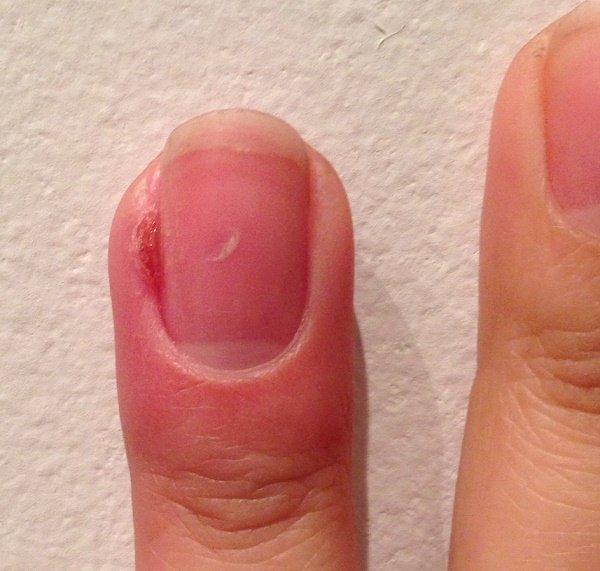pašalinti pirštų finger uždegimas sanariu uzdegimas vaikams