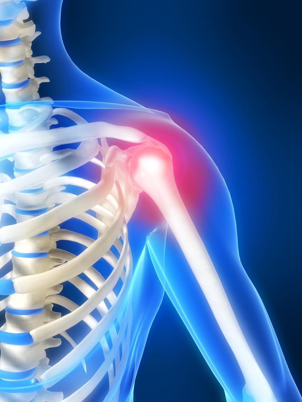 topinambur gydymo sąnarių ligos nei infekcinio artrito