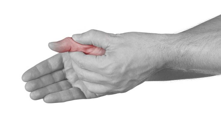 tepalas su skausmo kaklo su osteochondroze