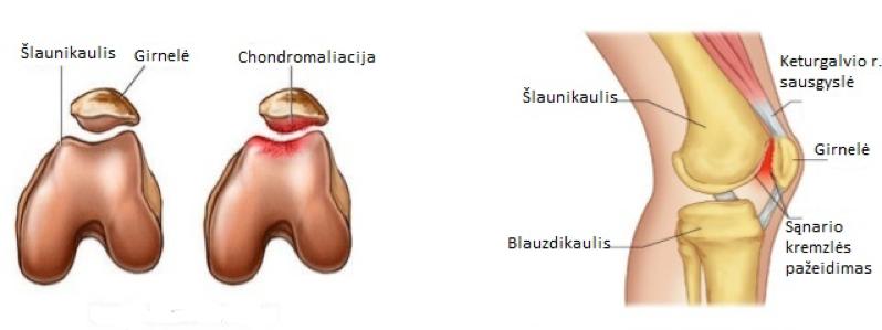 gydymas sąnarių liaudies metodų tirpimas pirštų artrito