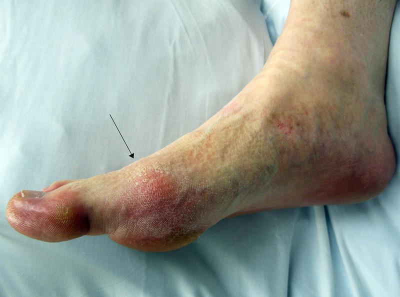 gydymas artrozės šepečiu