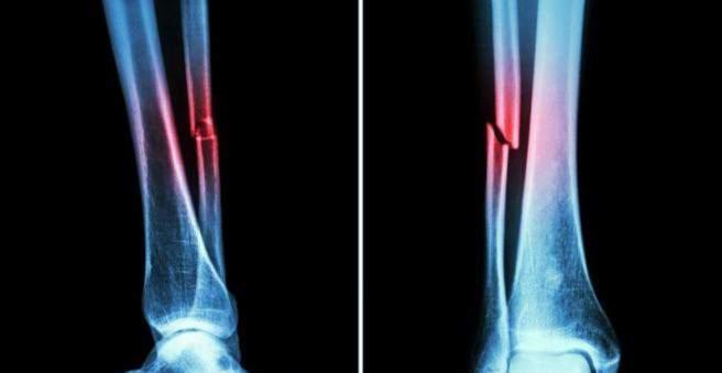 priežastis dėl skausmo blauzdikaulio kaip atsikratyti sąnarių uždegimas