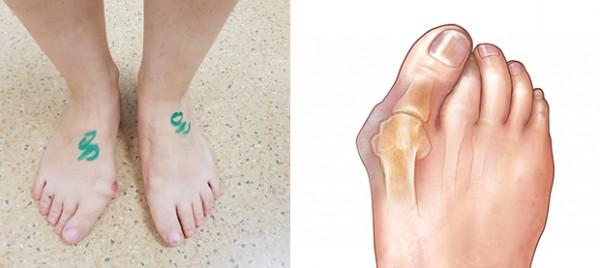 priemonė pėdos sąnarių bakterijos sukelia ligas sąnarių