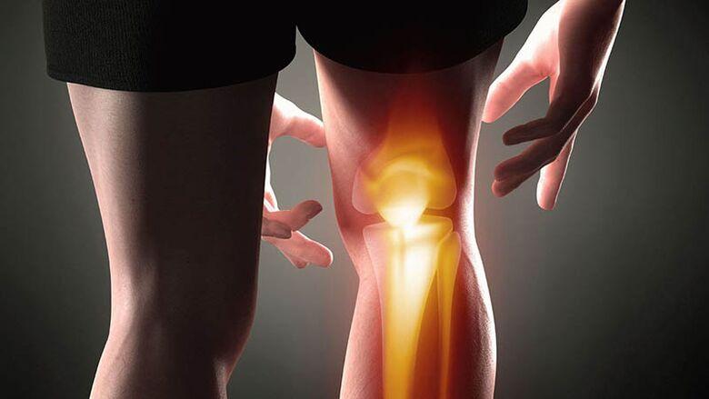 riešinio nykščio sąnario artrozė