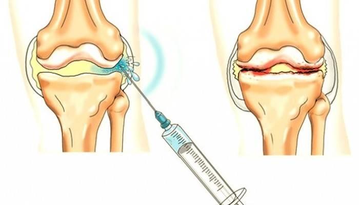raumenų ir sąnarių serga po švitinimo jei turite sąnarių sustingimas ischias