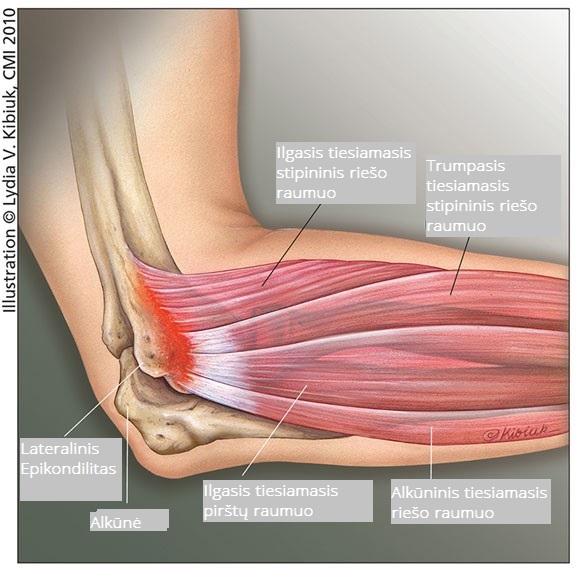 raumenys skauda alkūnės sąnarių ką daryti pašalinti skausmą iš sąnarių