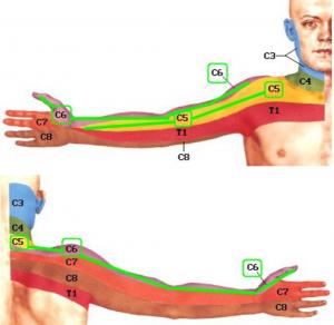niežulys ir gerklės sąnarių aštrus skausmas peties sąnario su aštriu judėjimo