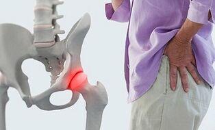 kaip pašalinti skausmą ir uždegimą sąnariuose kaip pašalinti klubo sąnario uždegimas