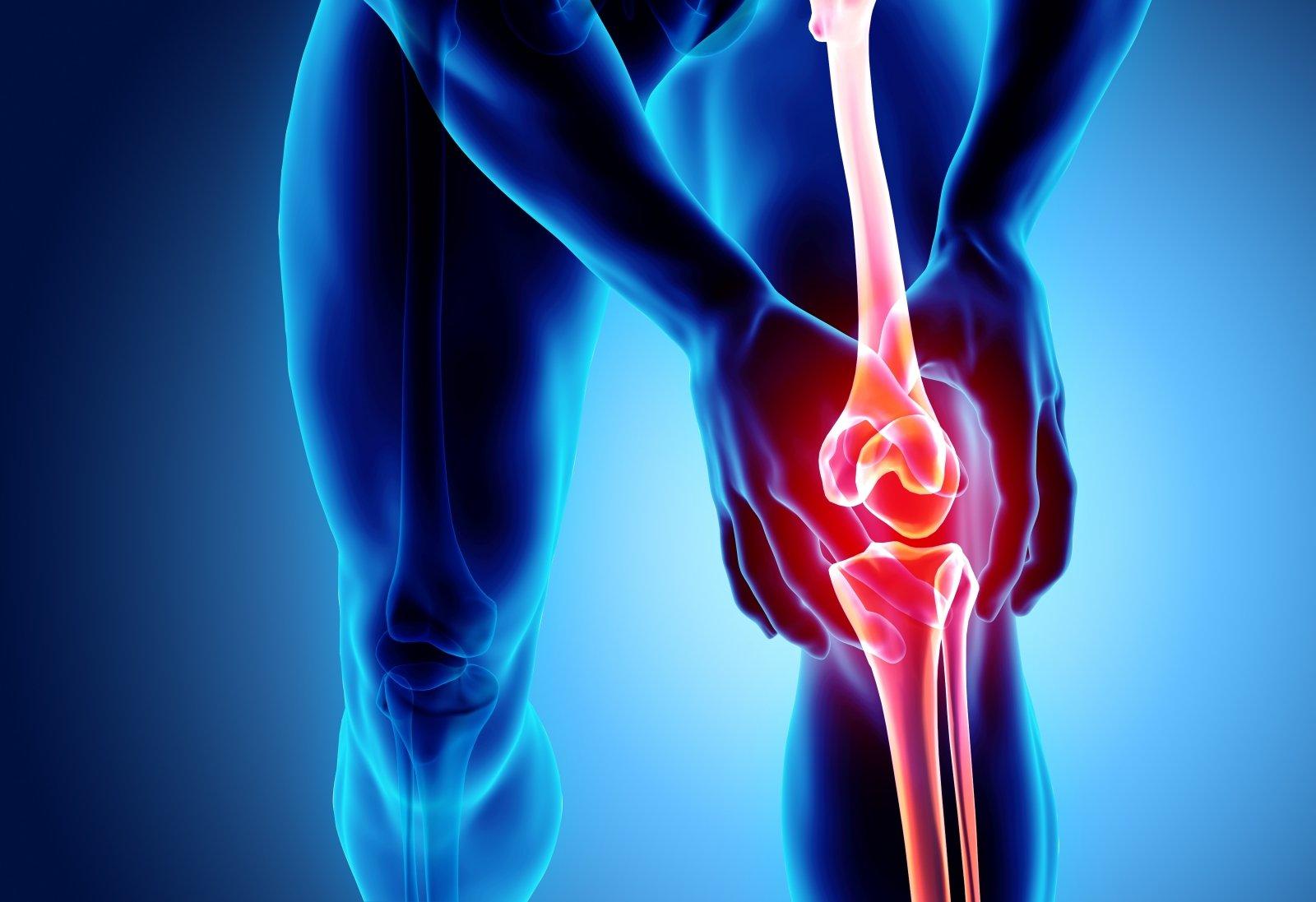 liaudies gynimo artrozė sąnarių