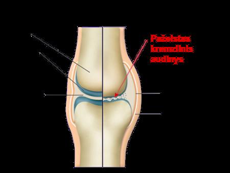 gydymas artrozės nykščio liaudies receptai artritu pirštais