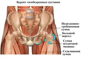sąnarių ant rankų tradicinė medicina jungtinis ant rankos gydymas