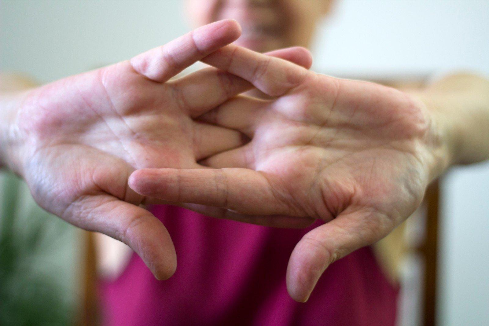 šviesos sąnarių ligos artrozė slankstelis gydymas