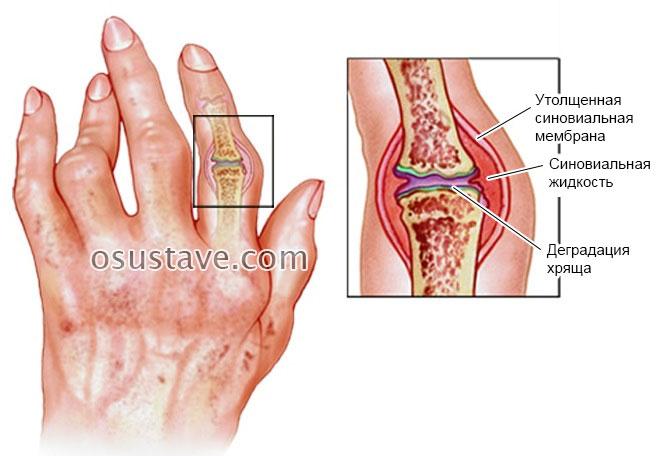 sunkus skausmas klubų artrozė sąnarių priežastys ir gydymas