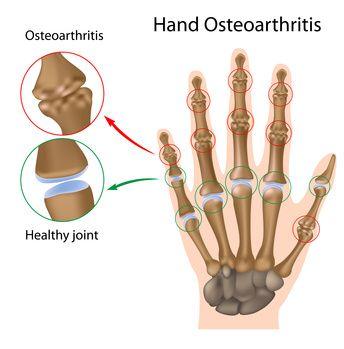 artrozė nykščio ant rankų gydymui
